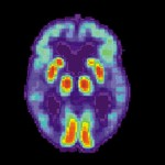 Alzheimer's-PET scan